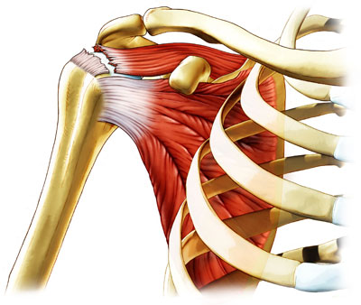 What Are The Signs Of A Rotator Cuff Injury